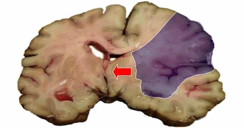 objawy udaru mózgu