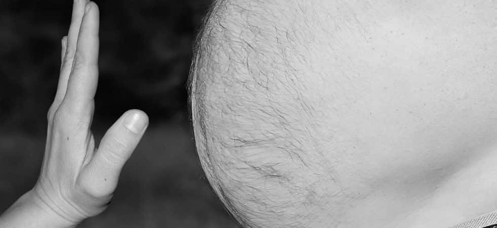 otyłość brzuszna i dieta